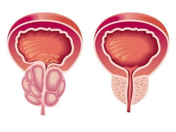 атонические формы простатитов